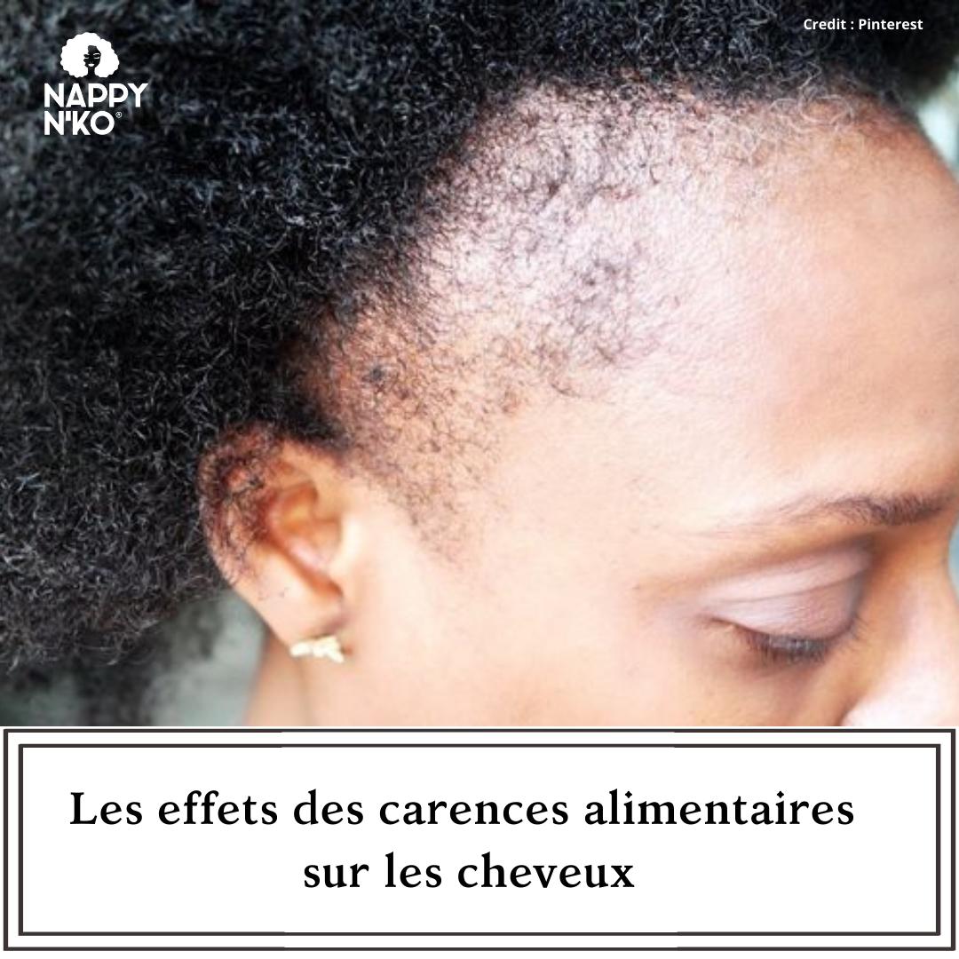 Les effets des carences alimentaires sur les cheveux